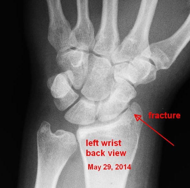 2014-05-29 wrist annotated